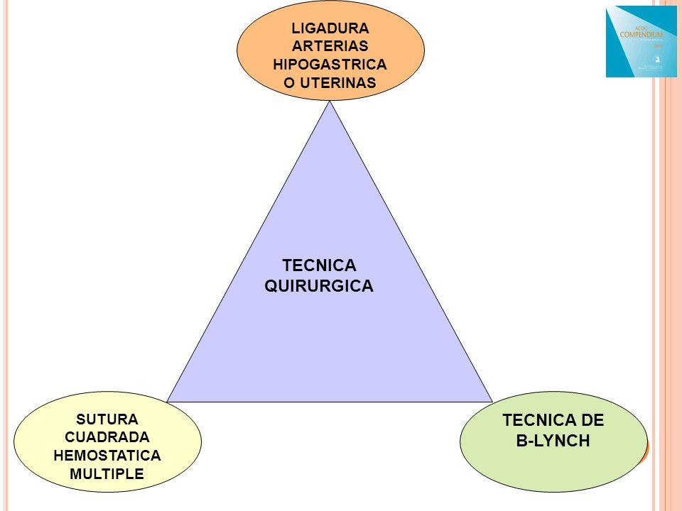 SUTURA CUADRADA HEMOSTATICA MULTIPLE LIGADURA ARTERIAS HIPOGASTRICA O UTERINAS TECNICA DE B-LYNCH TECNICA QUIRURGICA