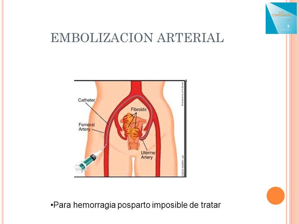 EMBOLIZACION ARTERIAL Para hemorragia posparto imposible de tratar