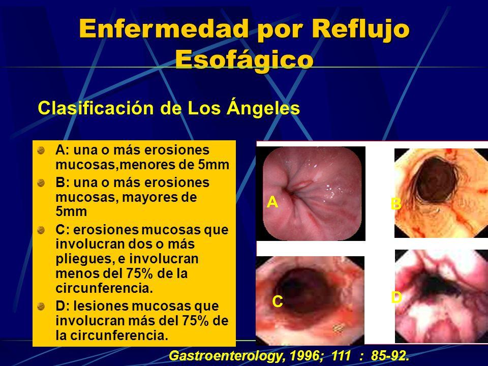 Enfermedad por Reflujo Esofágico A: una o más erosiones mucosas,menores de 5mm B: una o más erosiones mucosas, mayores de 5mm C: erosiones mucosas que