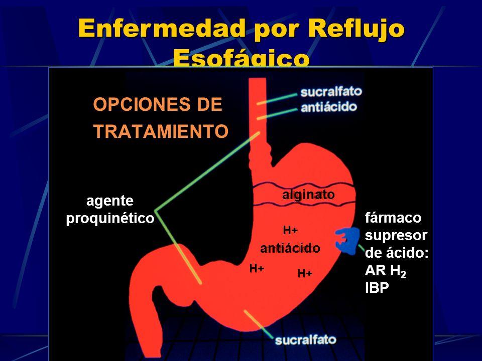 Enfermedad por Reflujo Esofágico OPCIONES DE TRATAMIENTO alginato antiácido H+ fármacosupresor de ácido: AR H 2 IBP agenteproquinético