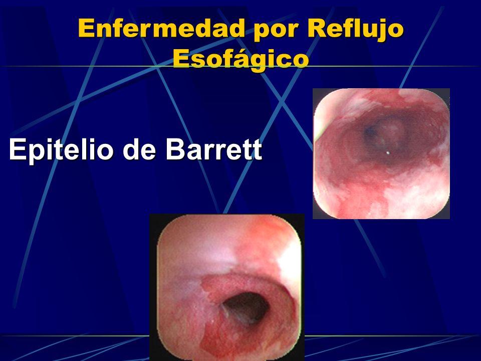 Enfermedad por Reflujo Esofágico Epitelio de Barrett