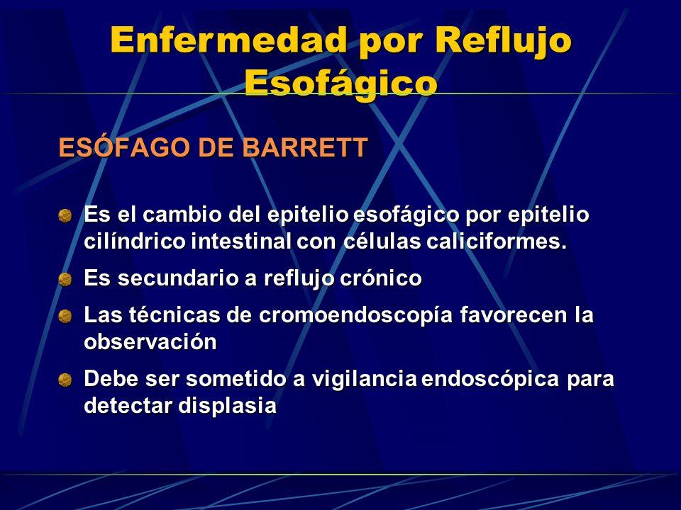 Enfermedad por Reflujo Esofágico ESÓFAGO DE BARRETT Es el cambio del epitelio esofágico por epitelio cilíndrico intestinal con células caliciformes. E