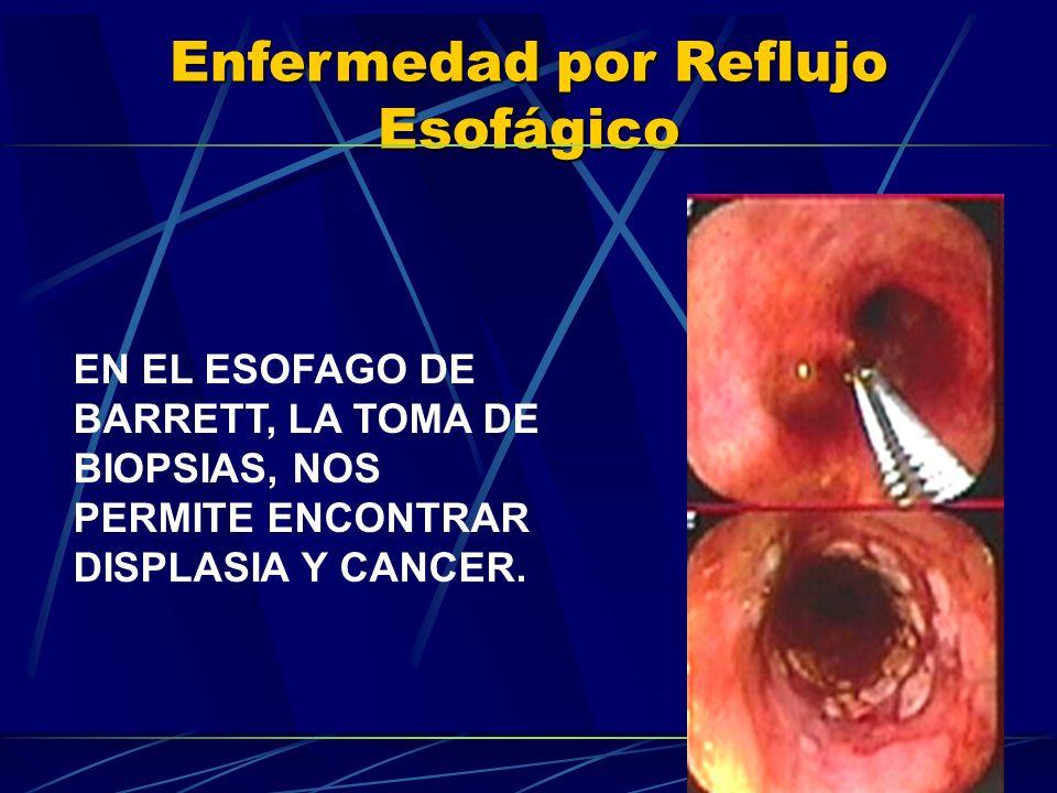 Enfermedad por Reflujo Esofágico EN EL ESOFAGO DE BARRETT, LA TOMA DE BIOPSIAS, NOS PERMITE ENCONTRAR DISPLASIA Y CANCER.