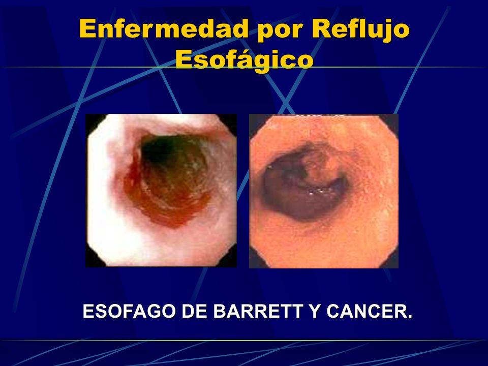 Enfermedad por Reflujo Esofágico ESOFAGO DE BARRETT Y CANCER.