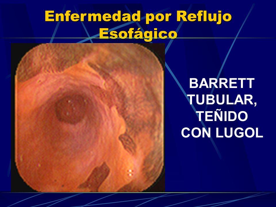Enfermedad por Reflujo Esofágico BARRETT TUBULAR, TEÑIDO CON LUGOL