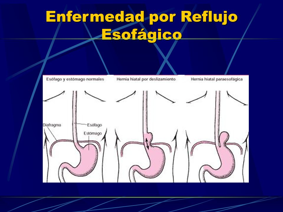 Enfermedad por Reflujo Esofágico ERNEERGE EROSIVA MUCHOS PACIENTES CON E.R.G.E, (MAS DEL 60%) NO PRESENTAN ESOFAGITIS, (ENFERMEDAD POR REFLUJO NO EROSIVA)