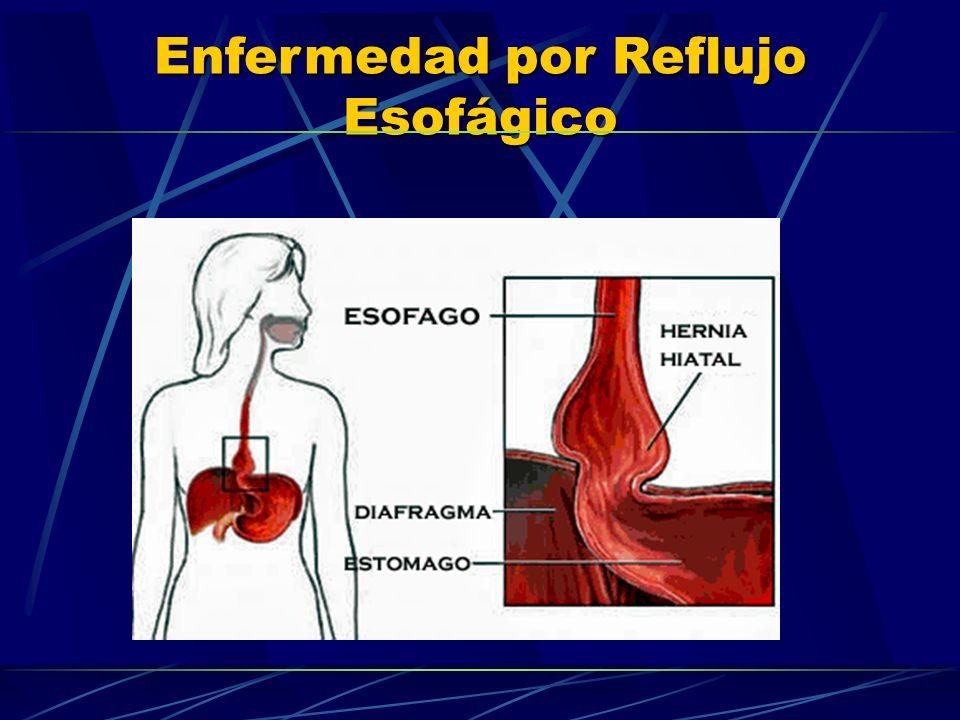 Enfermedad por Reflujo Esofágico BLOQUEADORES H2: Bloquean el receptor de la histamina Reducen la secreción ácida un 60-70%.