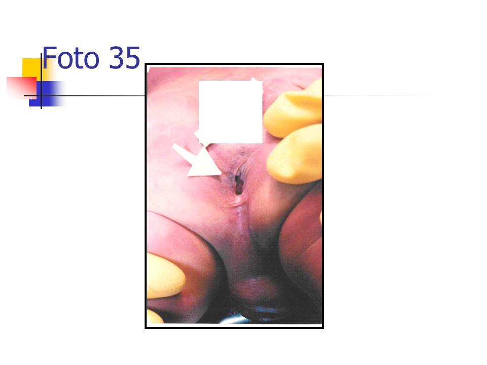 Foto 35