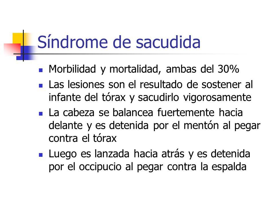 Síndrome de sacudida Morbilidad y mortalidad, ambas del 30% Las lesiones son el resultado de sostener al infante del tórax y sacudirlo vigorosamente L