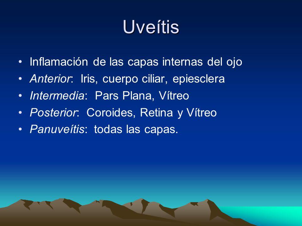 Uveítis Inflamación de las capas internas del ojo Anterior: Iris, cuerpo ciliar, epiesclera Intermedia: Pars Plana, Vítreo Posterior: Coroides, Retina