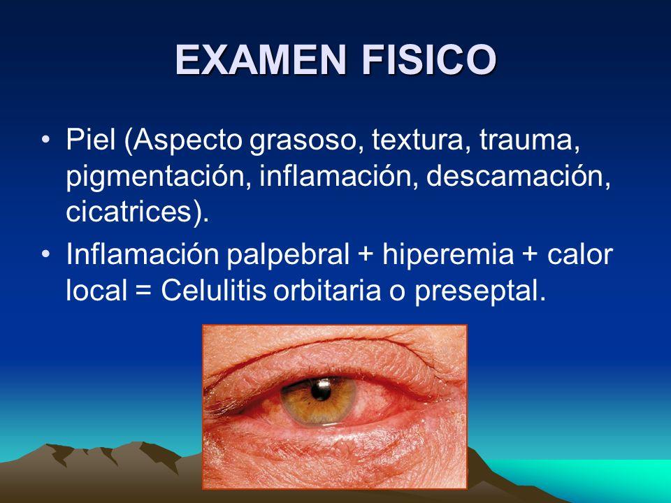 EXAMEN FISICO Piel (Aspecto grasoso, textura, trauma, pigmentación, inflamación, descamación, cicatrices). Inflamación palpebral + hiperemia + calor l