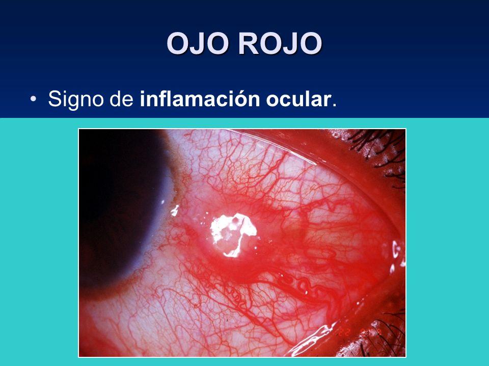 OJO ROJO Signo de inflamación ocular. Se aplica a un gran número de entidades clínicas, que van desde lesiones benignas ( hemorragia subconj.) hasta l
