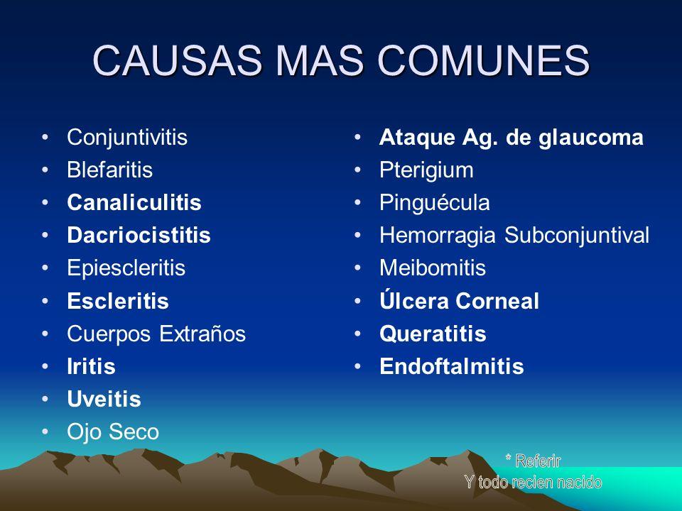CAUSAS MAS COMUNES Conjuntivitis Blefaritis Canaliculitis Dacriocistitis Epiescleritis Escleritis Cuerpos Extraños Iritis Uveitis Ojo Seco Ataque Ag.