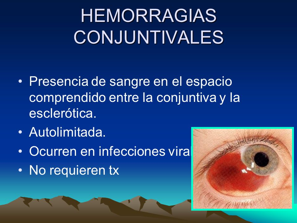 HEMORRAGIAS CONJUNTIVALES Presencia de sangre en el espacio comprendido entre la conjuntiva y la esclerótica. Autolimitada. Ocurren en infecciones vir