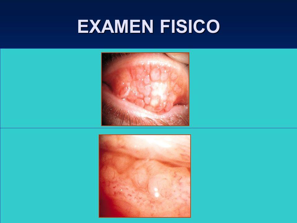 EXAMEN FISICO Folículos : Reacción aguda ( H.V., conj. Inclusión,Q. Epidémica ). –Reacción crónica ( tracoma, sind. Axenfeld, Moraxella,etc. ) Papilas