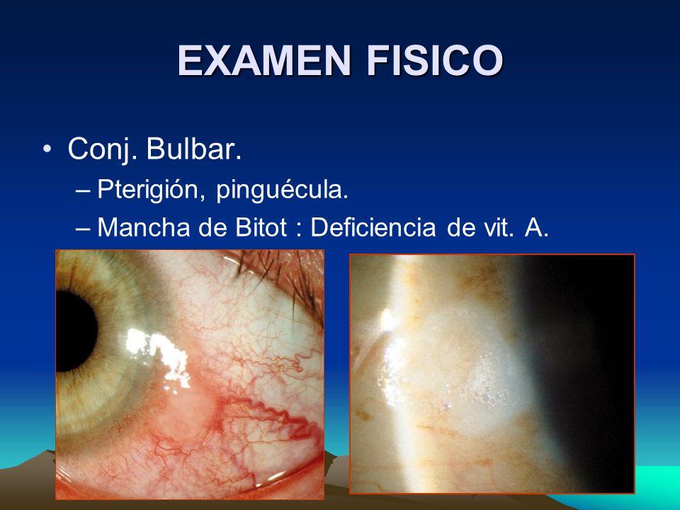 EXAMEN FISICO Conj. Bulbar. –Pterigión, pinguécula. –Mancha de Bitot : Deficiencia de vit. A.