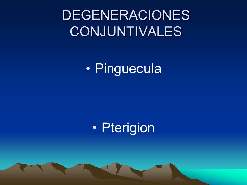 DEGENERACIONES CONJUNTIVALES Pinguecula Pterigion