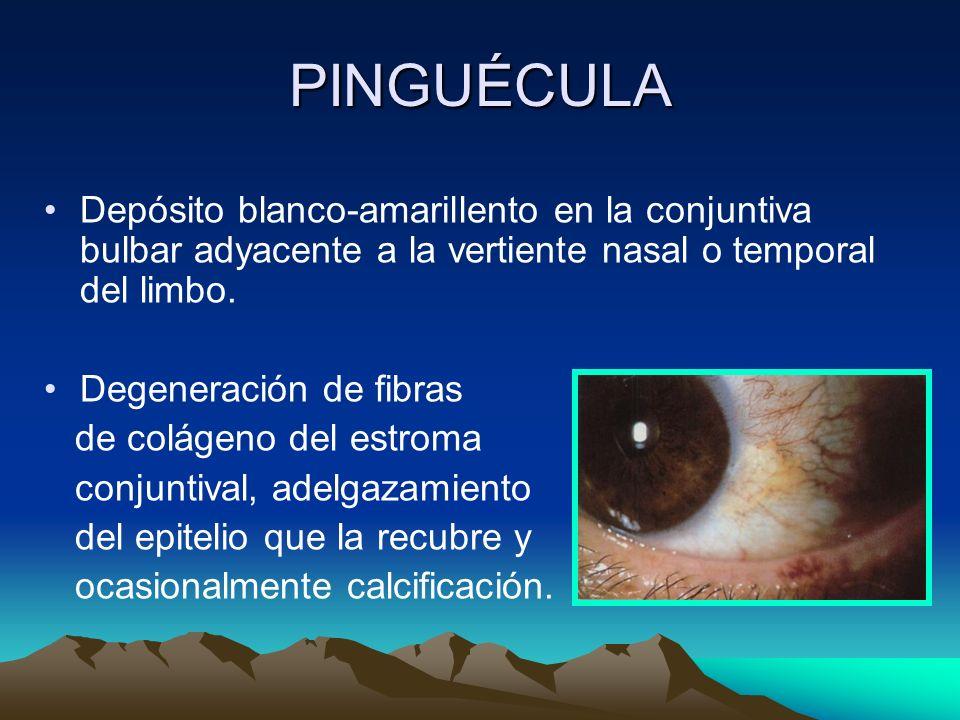 PINGUÉCULA Depósito blanco-amarillento en la conjuntiva bulbar adyacente a la vertiente nasal o temporal del limbo. Degeneración de fibras de colágeno