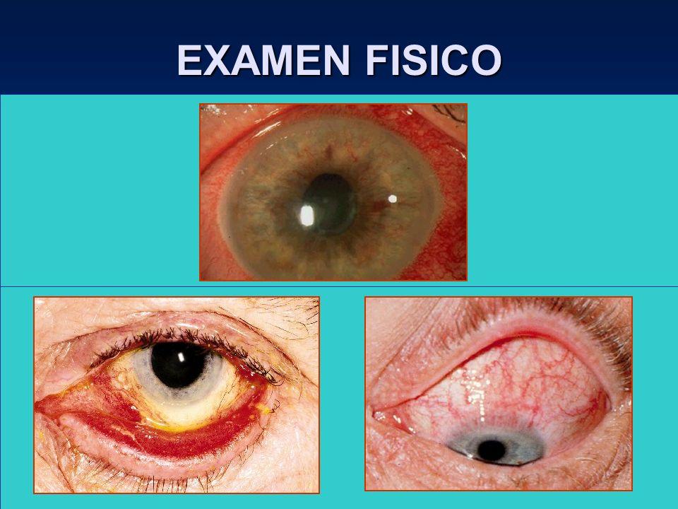 EXAMEN FISICO Córnea –QPS : Ojo seco, ectropión, entropión. –Micropanus : Conj. Inclusión, tracoma, abuso LC, etc. Cámara anterior : Descartar evidenc