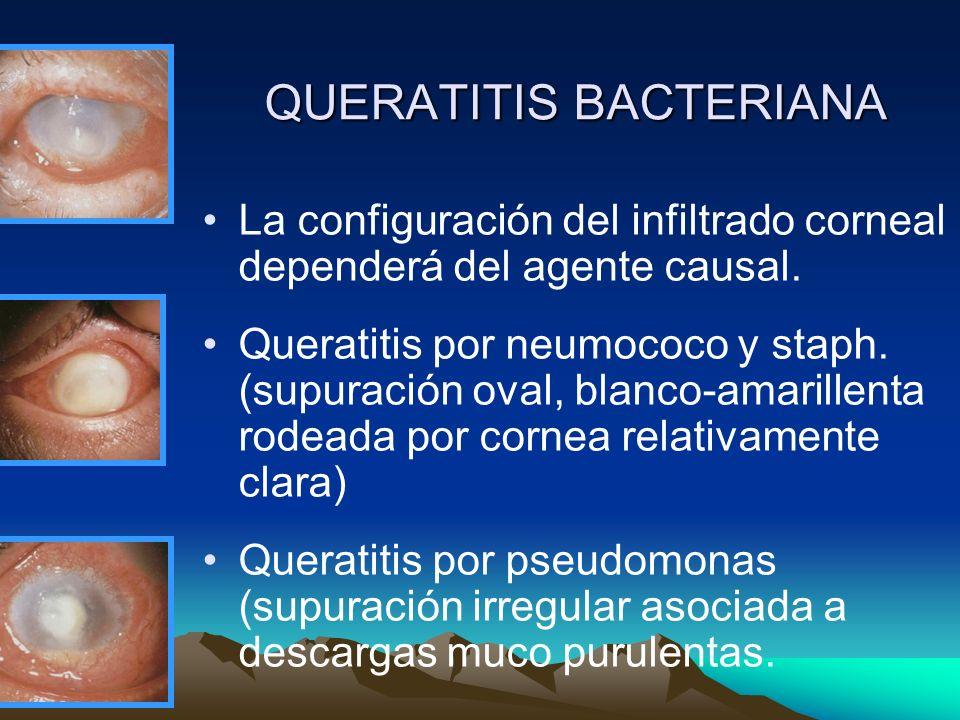 QUERATITIS BACTERIANA La configuración del infiltrado corneal dependerá del agente causal. Queratitis por neumococo y staph. (supuración oval, blanco-