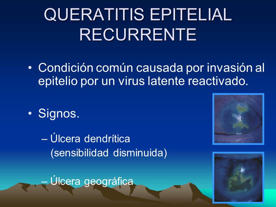 QUERATITIS EPITELIAL RECURRENTE Condición común causada por invasión al epitelio por un virus latente reactivado. Signos. –Úlcera dendrítica (sensibil