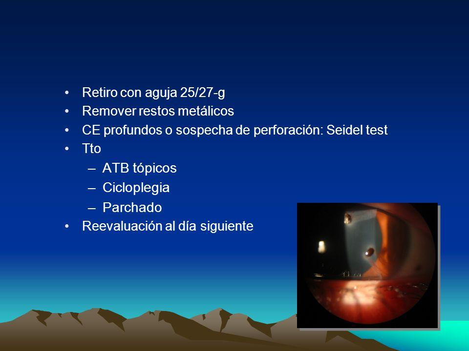 Retiro con aguja 25/27-g Remover restos metálicos CE profundos o sospecha de perforación: Seidel test Tto –ATB tópicos –Cicloplegia –Parchado Reevalua