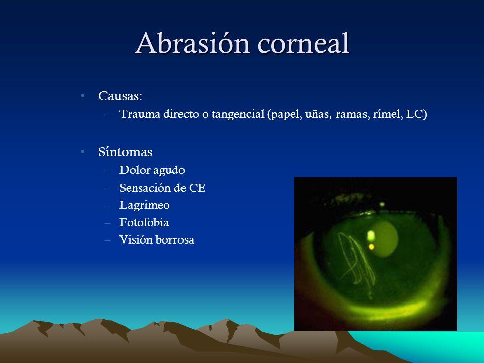 Abrasión corneal Causas: –Trauma directo o tangencial (papel, uñas, ramas, rímel, LC) Síntomas –Dolor agudo –Sensación de CE –Lagrimeo –Fotofobia –Vis
