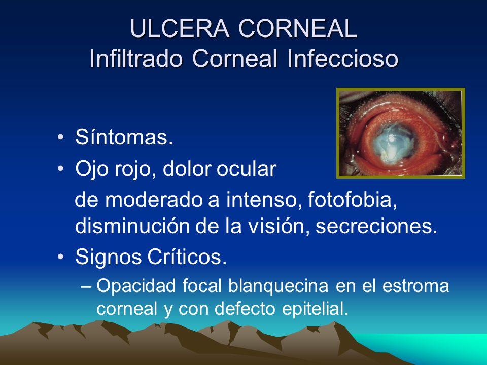 ULCERA CORNEAL Infiltrado Corneal Infeccioso Síntomas. Ojo rojo, dolor ocular de moderado a intenso, fotofobia, disminución de la visión, secreciones.