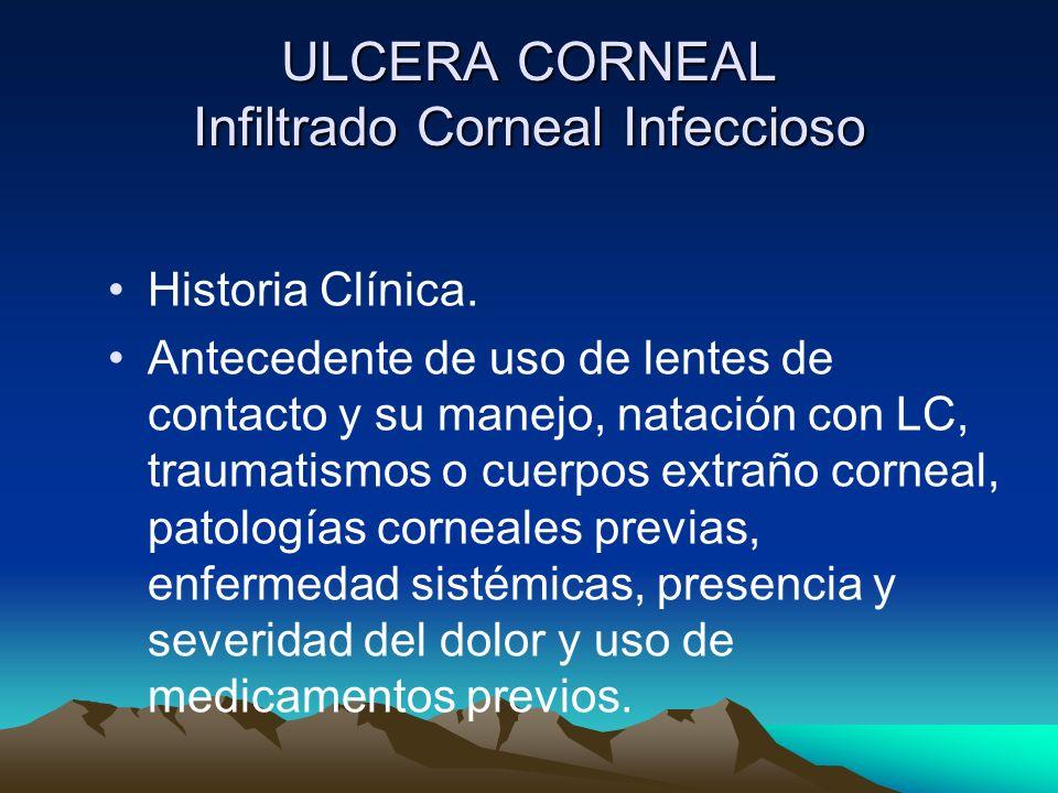 ULCERA CORNEAL Infiltrado Corneal Infeccioso Historia Clínica. Antecedente de uso de lentes de contacto y su manejo, natación con LC, traumatismos o c
