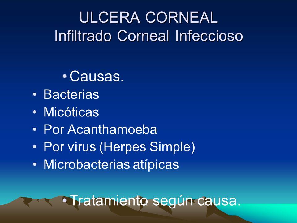 ULCERA CORNEAL Infiltrado Corneal Infeccioso Causas. Bacterias Micóticas Por Acanthamoeba Por virus (Herpes Simple) Microbacterias atípicas Tratamient