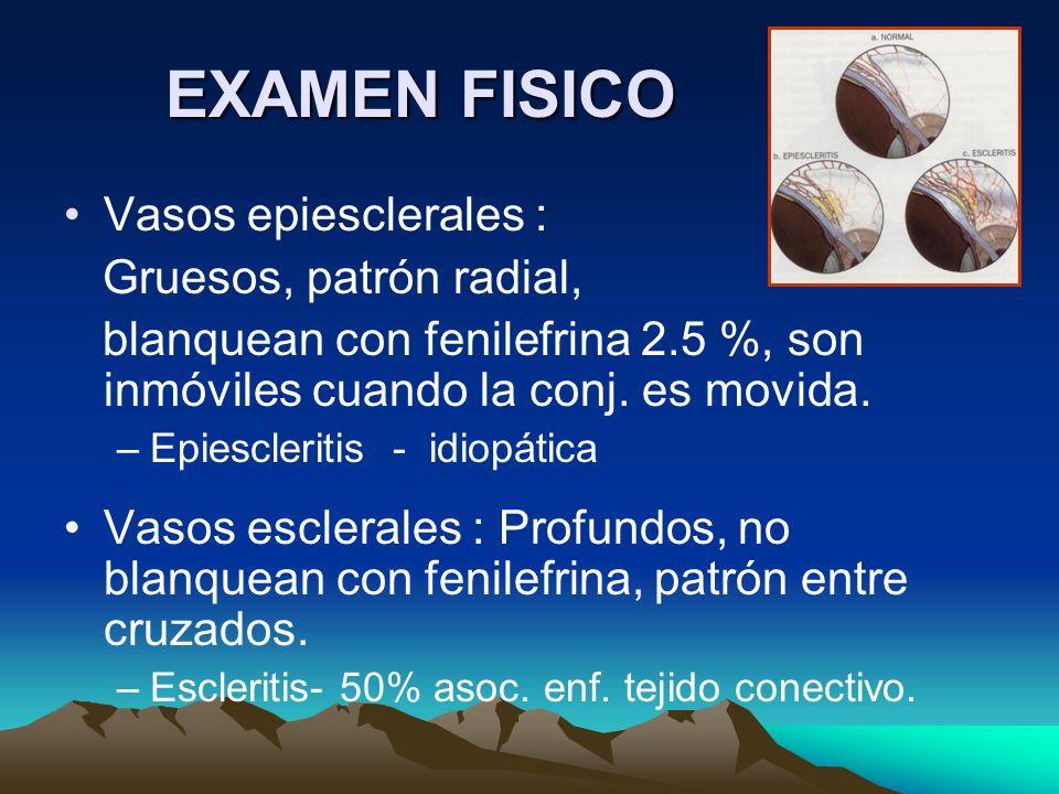 EXAMEN FISICO Vasos epiesclerales : Gruesos, patrón radial, blanquean con fenilefrina 2.5 %, son inmóviles cuando la conj. es movida. –Epiescleritis -