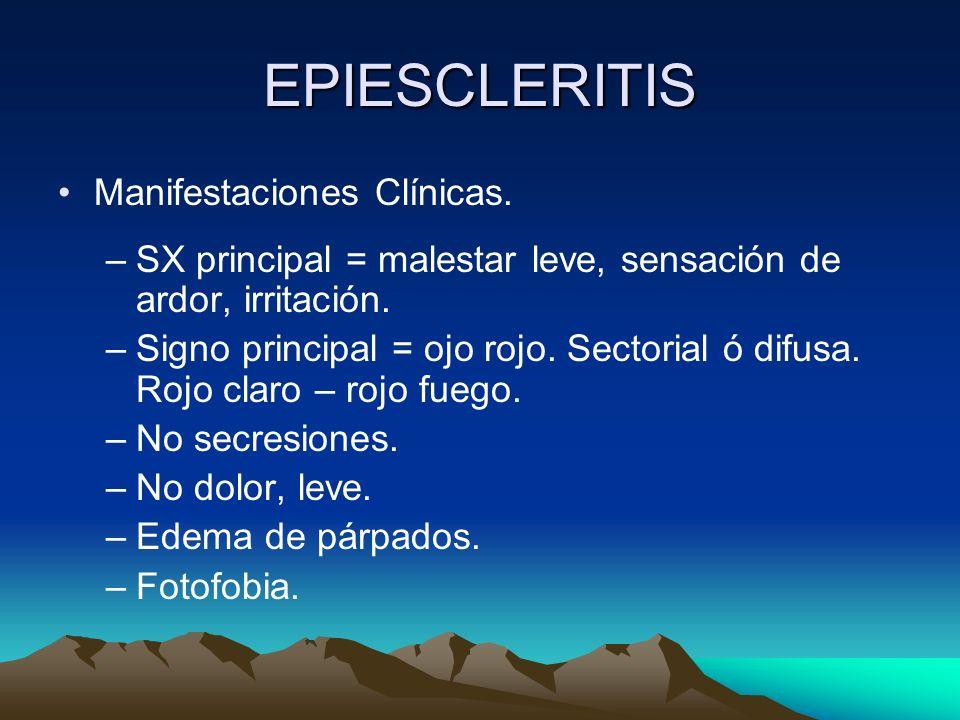 EPIESCLERITIS Manifestaciones Clínicas. –SX principal = malestar leve, sensación de ardor, irritación. –Signo principal = ojo rojo. Sectorial ó difusa