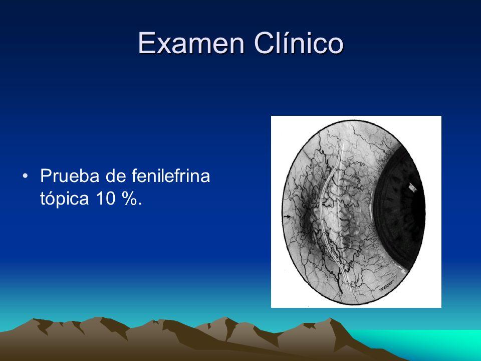 Examen Clínico Prueba de fenilefrina tópica 10 %.