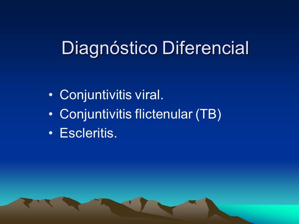 Diagnóstico Diferencial Conjuntivitis viral. Conjuntivitis flictenular (TB) Escleritis.