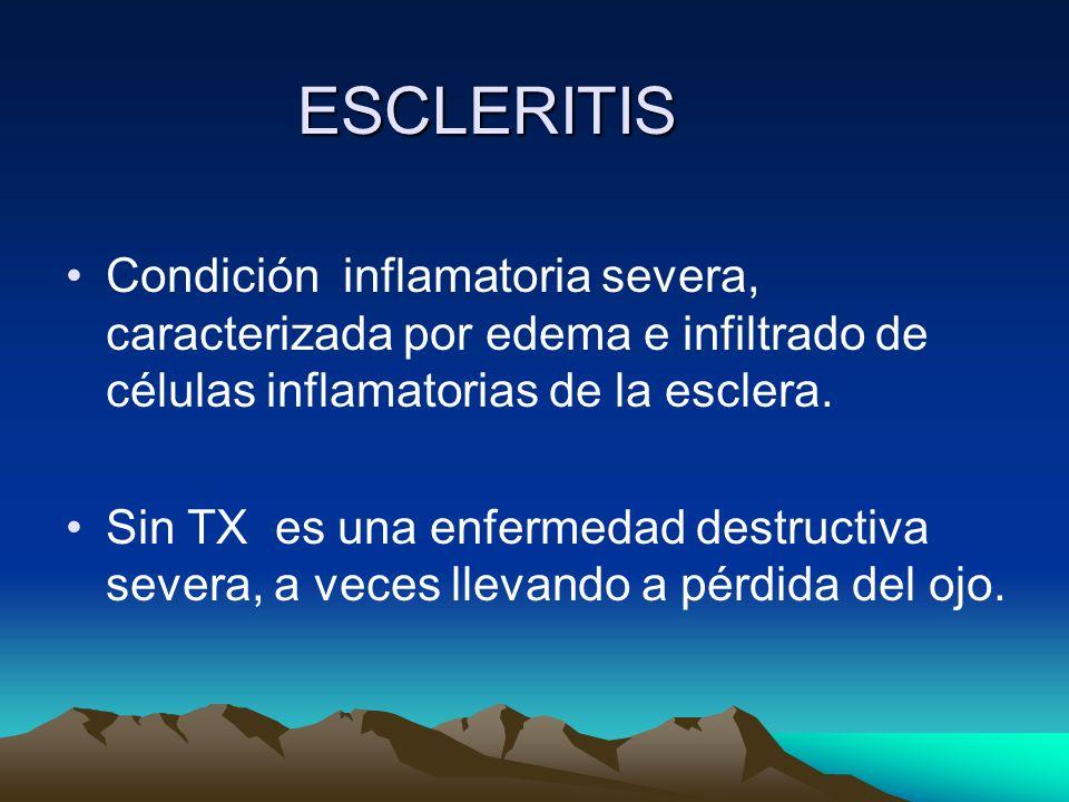 ESCLERITIS Condición inflamatoria severa, caracterizada por edema e infiltrado de células inflamatorias de la esclera. Sin TX es una enfermedad destru