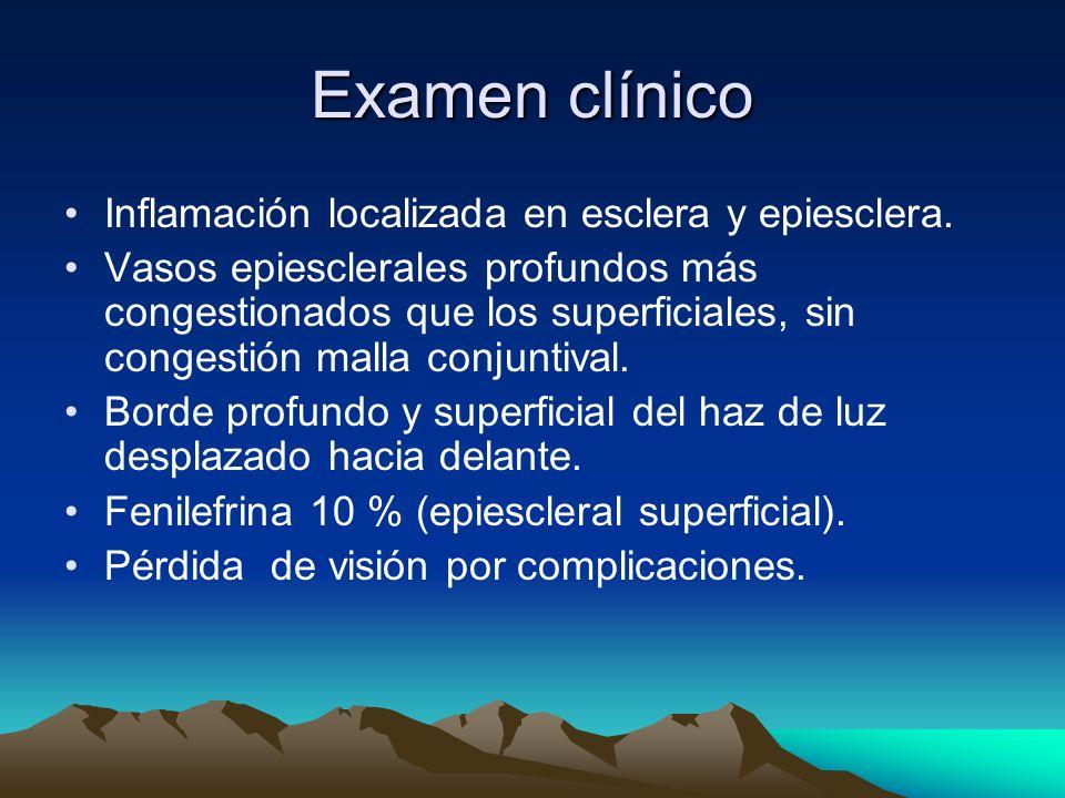 Examen clínico Inflamación localizada en esclera y epiesclera. Vasos epiesclerales profundos más congestionados que los superficiales, sin congestión