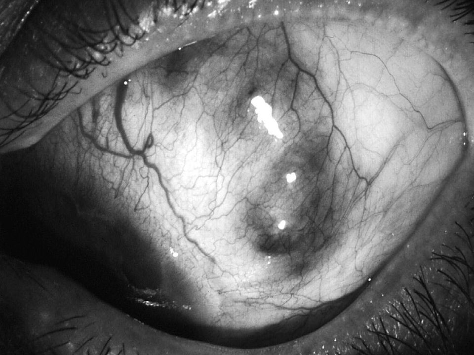 Enfermedades Sistémicas Asociadas Enfermedad de tejido conectivo, vasculitis, H.Z, H.S, rosácea, gota, TB, sífilis.