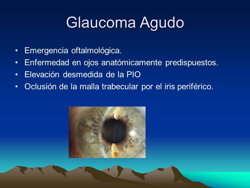 Glaucoma Agudo Emergencia oftalmológica. Enfermedad en ojos anatómicamente predispuestos. Elevación desmedida de la PIO Oclusión de la malla trabecula