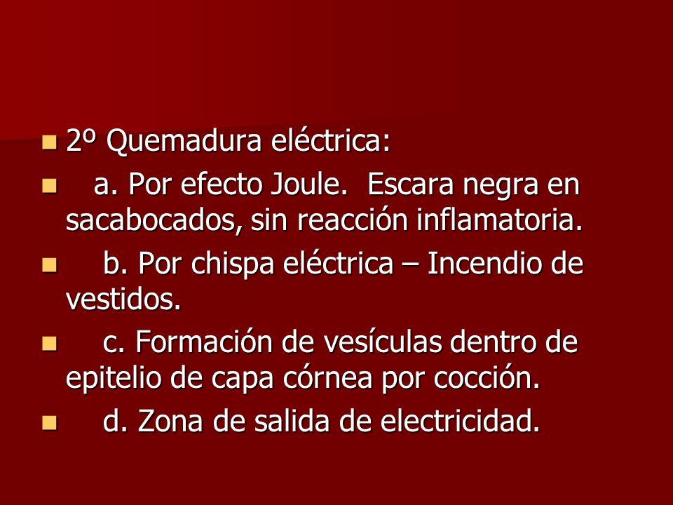 2º Quemadura eléctrica: 2º Quemadura eléctrica: a. Por efecto Joule. Escara negra en sacabocados, sin reacción inflamatoria. a. Por efecto Joule. Esca