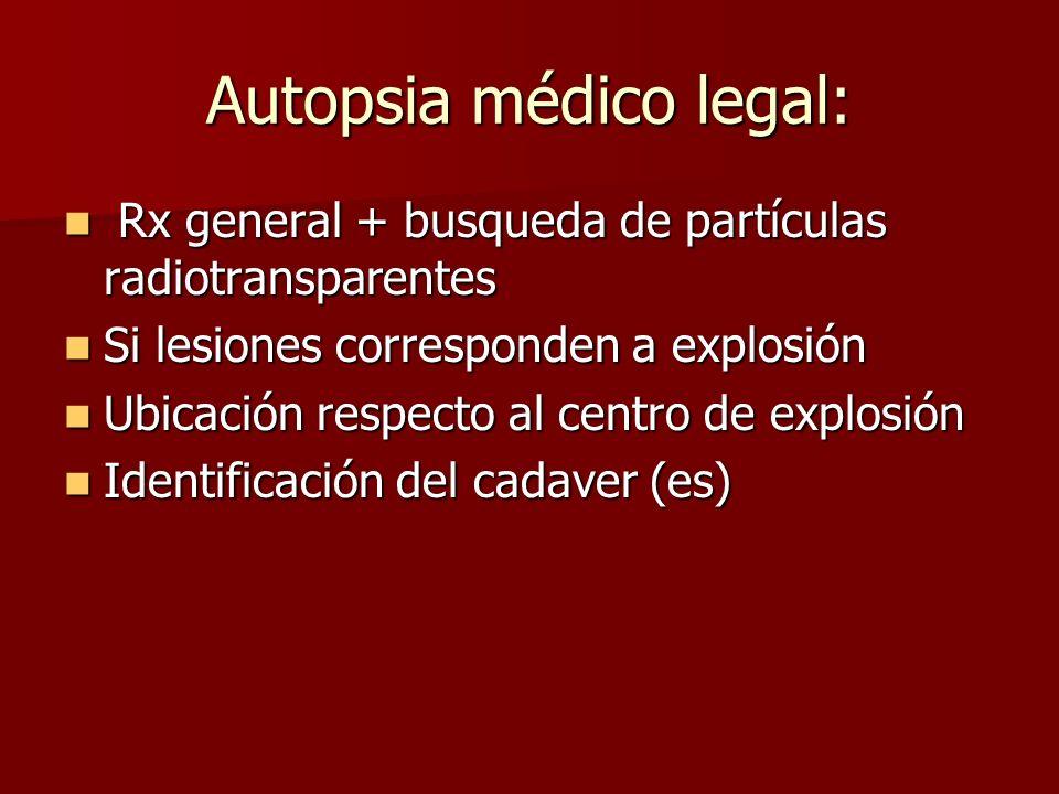 Autopsia médico legal: Rx general + busqueda de partículas radiotransparentes Rx general + busqueda de partículas radiotransparentes Si lesiones corre