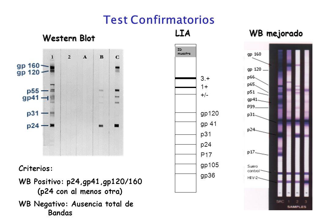 Test Confirmatorios Western Blot LIA Criterios: WB Positivo: p24,gp41,gp120/160 (p24 con al menos otra) WB Negativo: Ausencia total de Bandas WB mejor