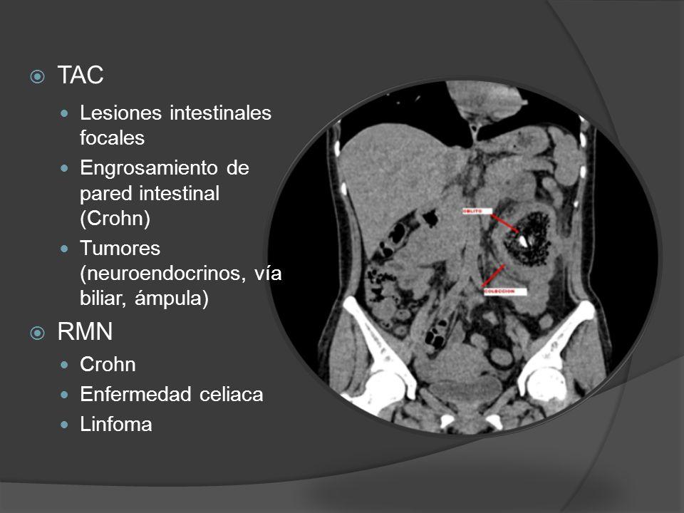 TAC Lesiones intestinales focales Engrosamiento de pared intestinal (Crohn) Tumores (neuroendocrinos, vía biliar, ámpula) RMN Crohn Enfermedad celiaca