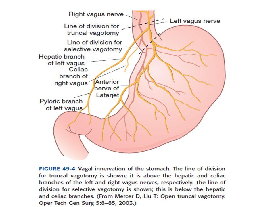 Otras etiologías menos frecuentes: Esofagitis: Sangrados muy leves cuando los produce.