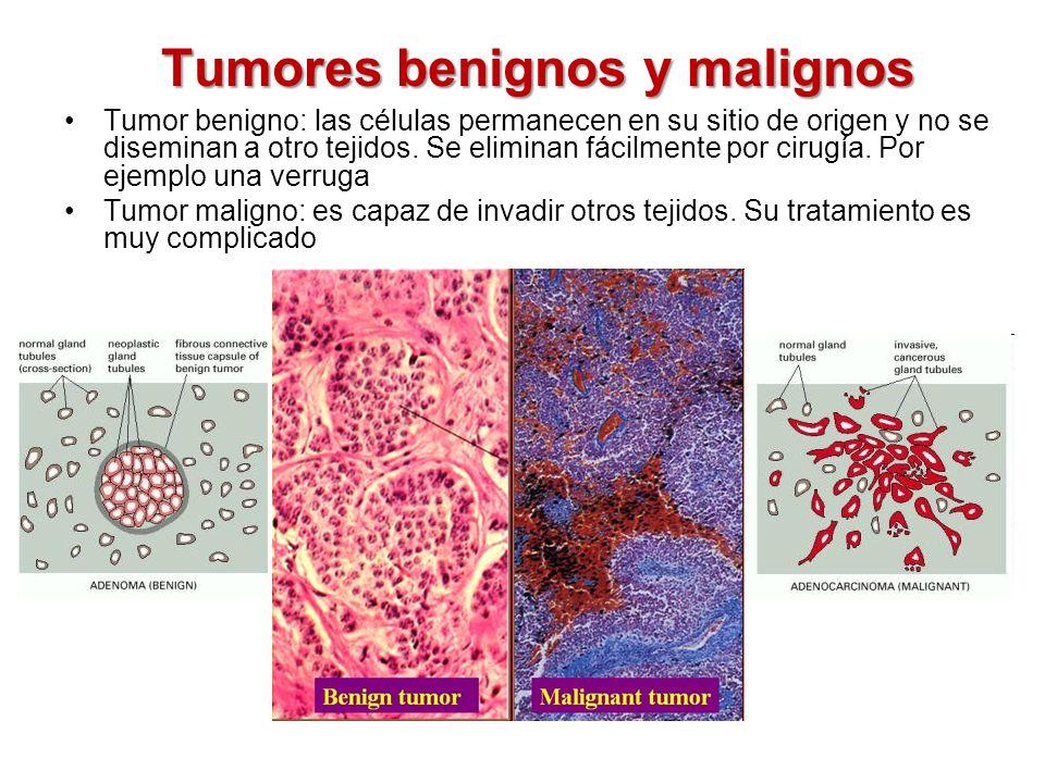 Factores genéticos Alteraciones en protooncogenes o en genes supresores de tumores Mutaciones más frecuentes: -puntuales -amplificación de segmentos de DNA -translocaciones cromosómicas Protooncogenes Genes que pueden convertirse en oncogenes Los oncogenes estimulan la proliferación celular Genes supresores de tumores Detienen la proliferación celular