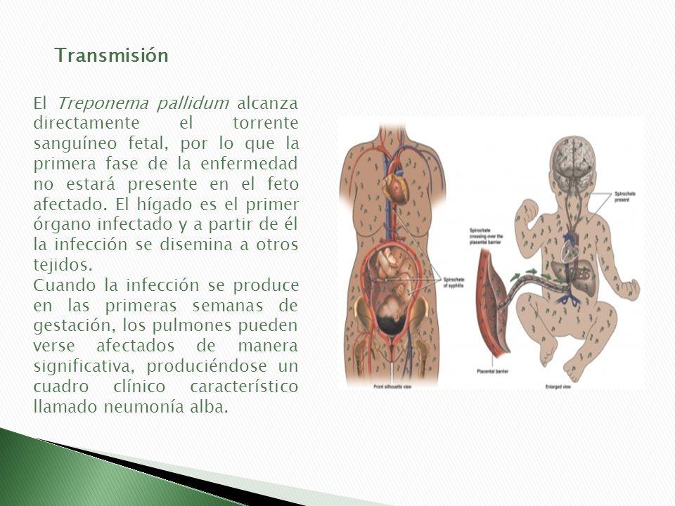 El Treponema pallidum alcanza directamente el torrente sanguíneo fetal, por lo que la primera fase de la enfermedad no estará presente en el feto afec