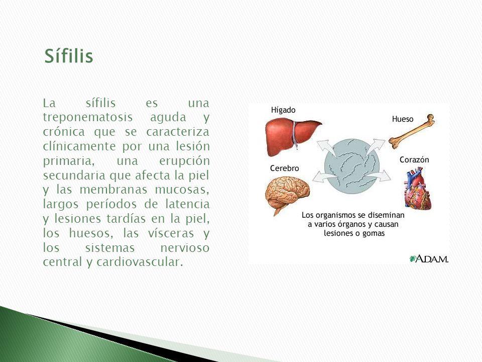 Sífilis La sífilis es una treponematosis aguda y crónica que se caracteriza clínicamente por una lesión primaria, una erupción secundaria que afecta l