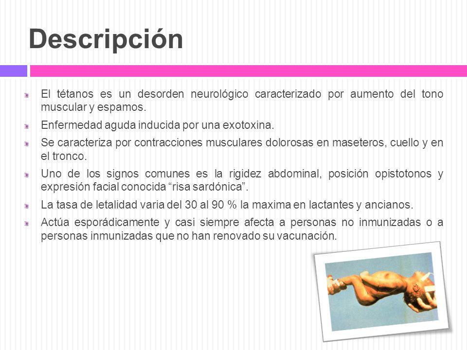 Descripción El tétanos es un desorden neurológico caracterizado por aumento del tono muscular y espamos. Enfermedad aguda inducida por una exotoxina.