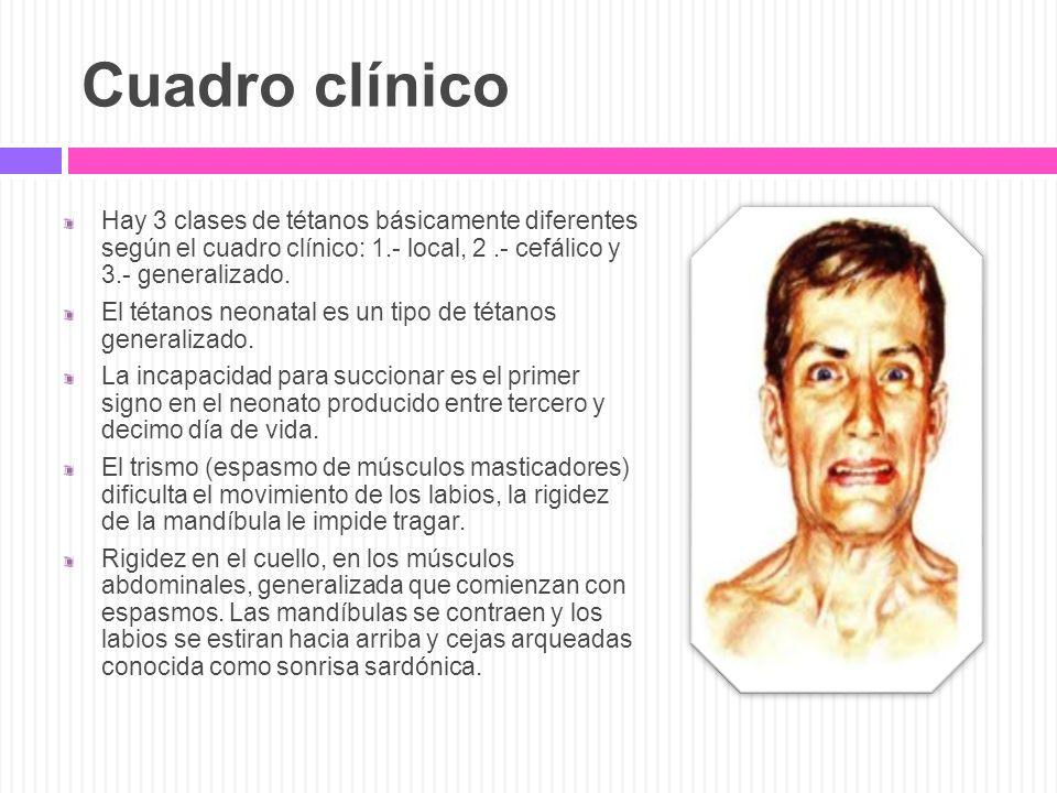 Cuadro clínico Hay 3 clases de tétanos básicamente diferentes según el cuadro clínico: 1.- local, 2.- cefálico y 3.- generalizado. El tétanos neonatal