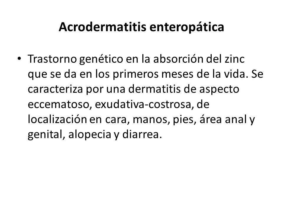 Acrodermatitis enteropática Trastorno genético en la absorción del zinc que se da en los primeros meses de la vida. Se caracteriza por una dermatitis