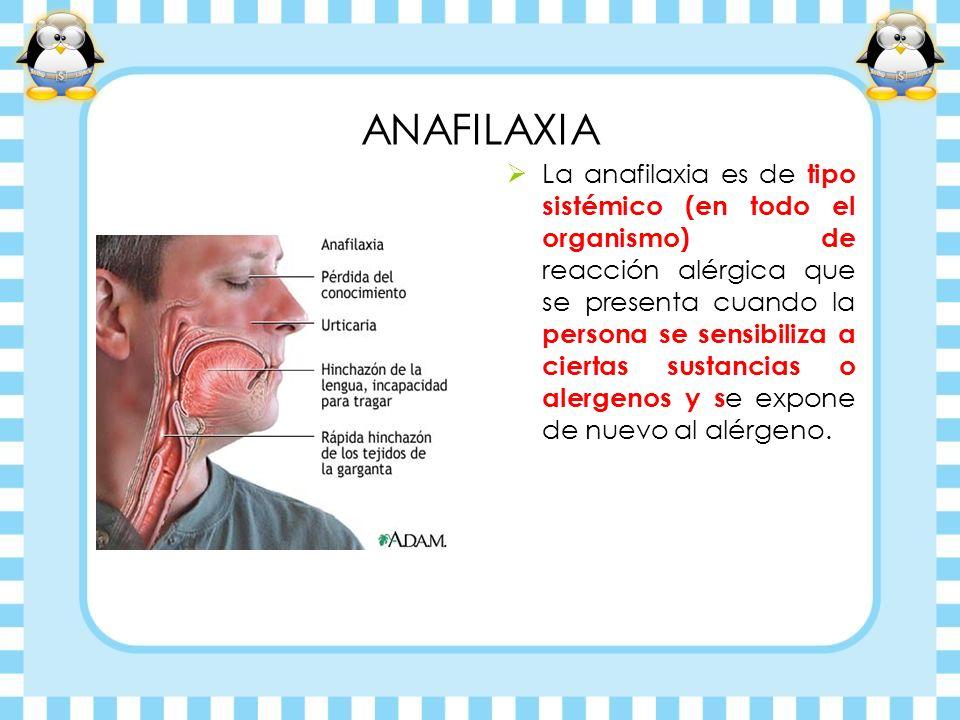 ANAFILAXIA La anafilaxia es de tipo sistémico (en todo el organismo) de reacción alérgica que se presenta cuando la persona se sensibiliza a ciertas s